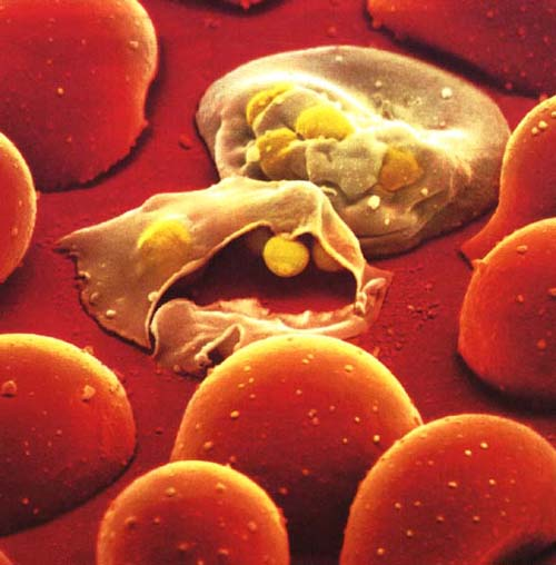 http://www.businesspundit.com/wp-content/uploads/2011/09/Malaria-red.jpg